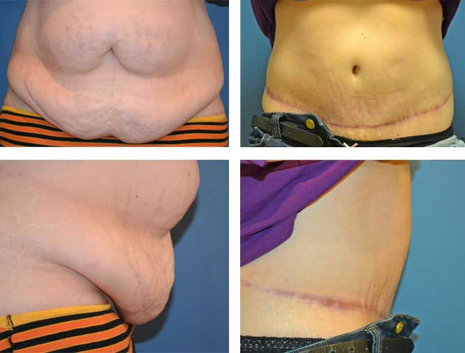 Tummy tuck procedures | Pioneer Valley Plastic Surgery | Springfield, MA