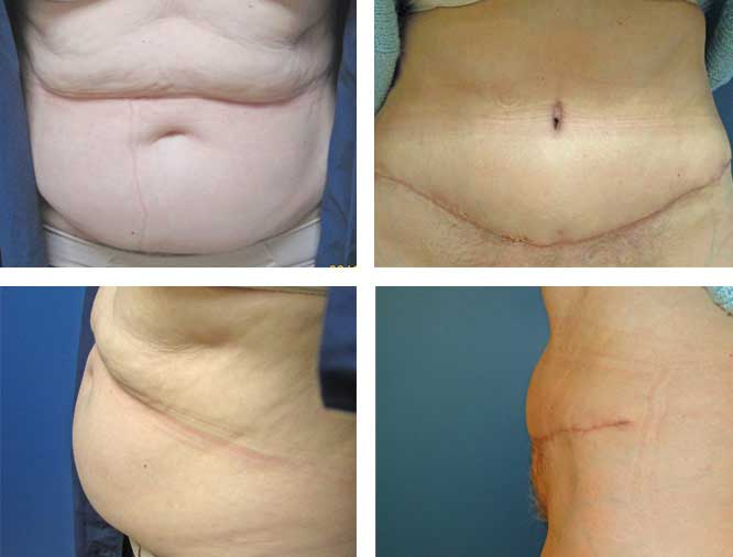 Tummy Tuck Procedures Pioneer Valley Plastic Surgery Springfield Ma
