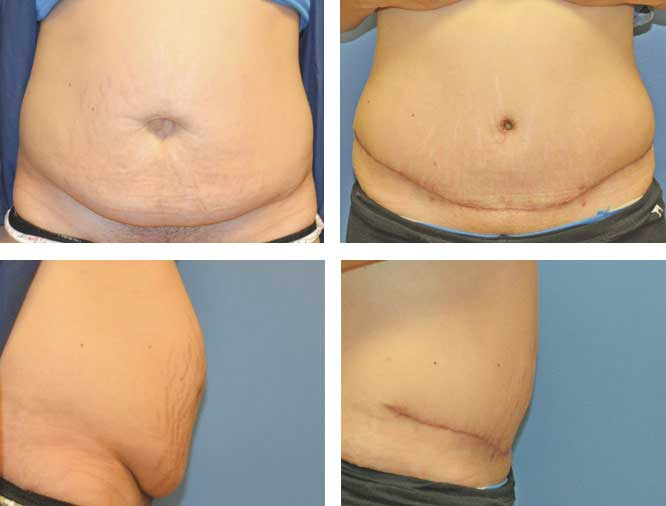 Tummy Tuck Procedures Pioneer Valley Plastic Surgery Springfield Ma
