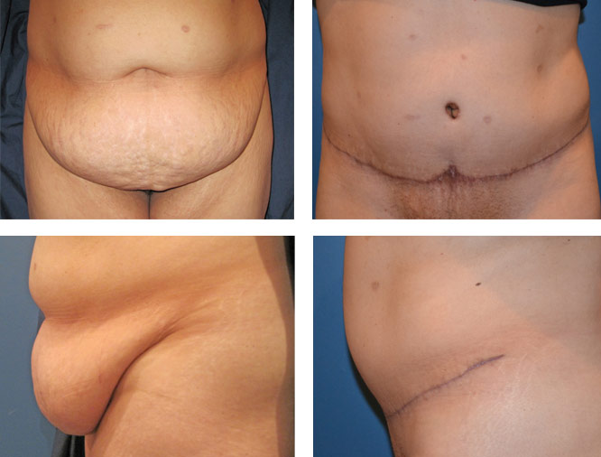Post Bariatric Plastic Surgery Pioneer Valley Plastic Surgery