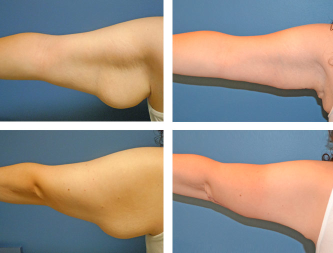Brachioplasty Upper Arm Lift By Pioneer Valley Plastic Surgery