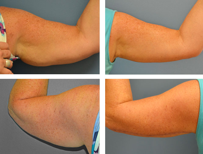 Scars From Upper Arm Lifts : Brachioplasty upper arm lift by pioneer valley plastic