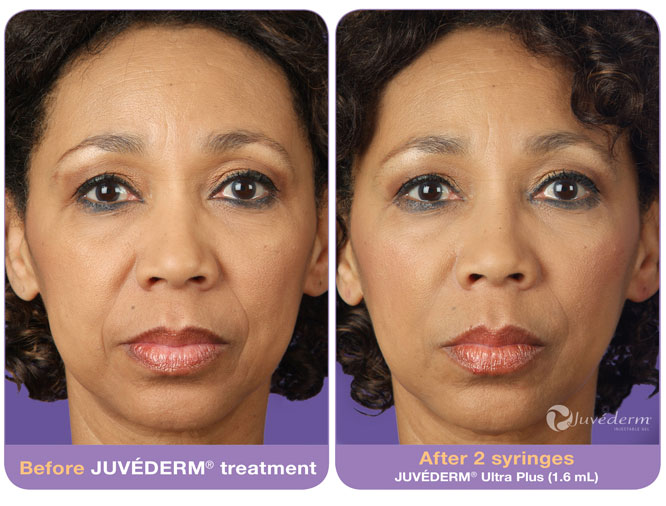 Juvederm® Injections | Pioneer Valley Plastic Surgery