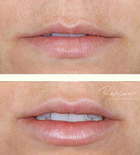 Restylane lip injections and wrinkle treatments for women in