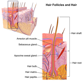 Laser hair removal penetrates the hair shaft and disables the hair follicle