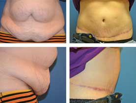 BEFORE & AFTER: Abdominoplasty #1