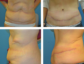 BEFORE & AFTER: Abdominoplasty #2