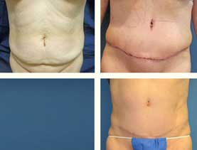 BEFORE & AFTER: Abdominoplasty #6 with liposuction performed by Dr. Melissa Johnson.