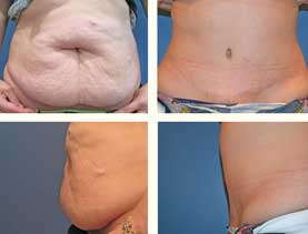 BEFORE & AFTER: Abdominoplasty #7 with liposuction performed by Dr. Melissa Johnson.