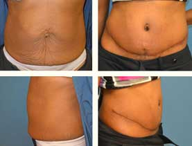 BEFORE & AFTER: Abdominoplasty #8 performed by Dr. Melissa Johnson.