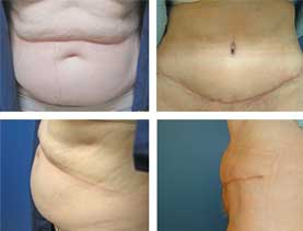 BEFORE & AFTER: Abdominoplasty #3