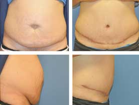 BEFORE & AFTER: Abdominoplasty #4