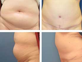 BEFORE & AFTER: Abdominoplasty #5, with liposuction