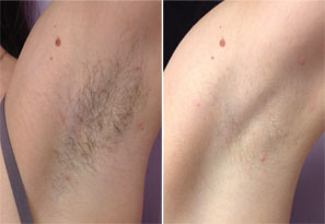 Before and after laser hair removal photo - after 4 months and 3 treatments