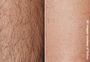 Before and after laser hair removal photo - after 6 months and 3 treatments