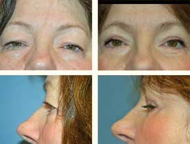BEFORE & AFTER: Blepharoplasty #2 (eyelids) surgery performed by Dr. Melissa Johnson