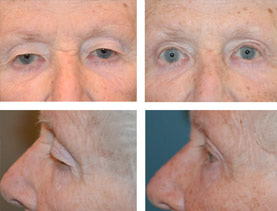 BEFORE & AFTER: Blepharoplasty #1 (eyelids) surgery performed by Dr. Melissa Johnson