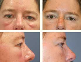 BEFORE & AFTER: Blepharoplasty (eyelids) #3 surgery performed by Dr. Melissa Johnson