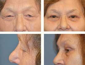 BEFORE & AFTER: Upper Blepharoplasty #4 surgery performed by Dr. Melissa Johnson