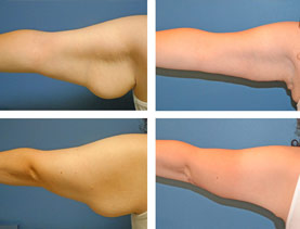 BEFORE & AFTER: Brachioplasty (Arm Lift) #1 performed by Dr. Melissa Johnson