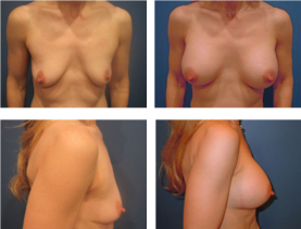 BEFORE & AFTER: Breast augmentation #1 surgery performed by Dr. Melissa Johnson