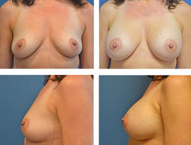 BEFORE & AFTER: Breast augmentation #10 surgery performed by Dr. Melissa Johnson