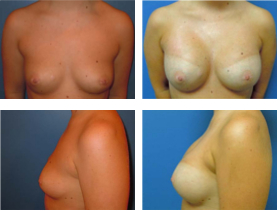 BEFORE & AFTER: breast augmentation #2 surgery performed by Dr. Melissa Johnson