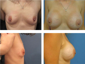 BEFORE & AFTER: Breast augmentation #3 surgery performed by Dr. Melissa Johnson