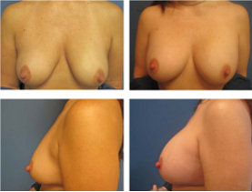 BEFORE & AFTER: Breast augmentation #4 surgery performed by Dr. Melissa Johnson