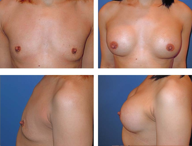 Breast augmentation plastic surgeons