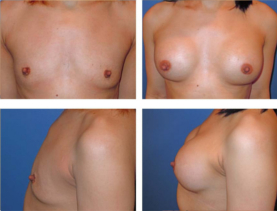 BEFORE & AFTER: Breast augmentation #5 surgery performed by Dr. Melissa Johnson