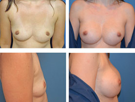 BEFORE & AFTER: Breast augmentation #6 surgery performed by Dr. Melissa Johnson