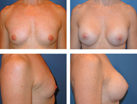 BEFORE & AFTER: Breast augmentation #7 surgery performed by Dr. Melissa Johnson