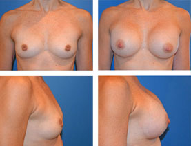BEFORE & AFTER: Breast augmentation #11 surgery performed by Dr. Melissa Johnson