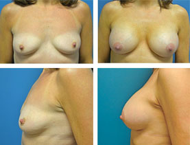 BEFORE & AFTER: Breast augmentation #12 surgery performed by Dr. Melissa Johnson