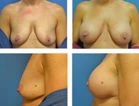 BEFORE & AFTER: Breast augmentation #13 surgery performed by Dr. Melissa Johnson