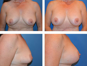 BEFORE & AFTER: Breast augmentation #8 surgery performed by Dr. Melissa Johnson