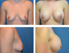BEFORE & AFTER: Breast augmentation #9 surgery performed by Dr. Melissa Johnson