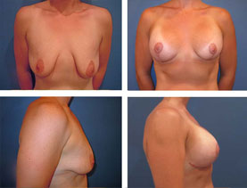 BEFORE & AFTER: breast lift #2