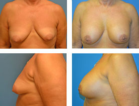 BEFORE & AFTER: Breast lift #4