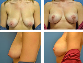 BEFORE & AFTER: breast lift #5