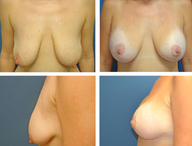 BEFORE & AFTER: Breast lift #1