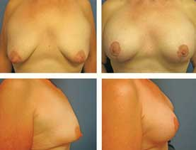 BEFORE & AFTER: breast lift #6