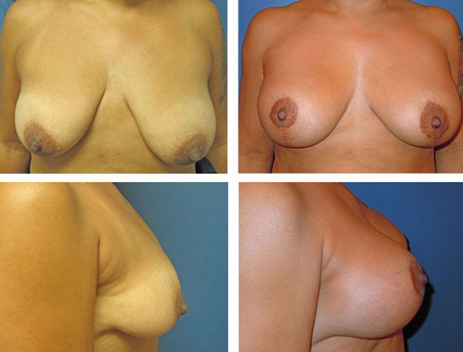 BEFORE & AFTER: Breast lift #3