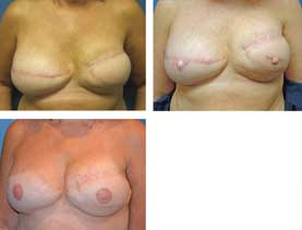Breast reconstruction #6