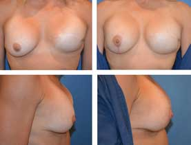 BEFORE & AFTER: Breast reconstruction #5