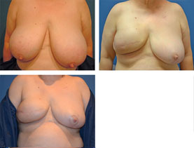 BEFORE & AFTER: Breast reconstruction #7