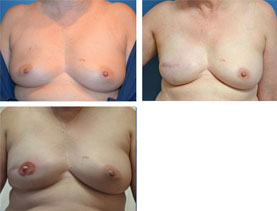 BEFORE & AFTER: breast reconstruction #8