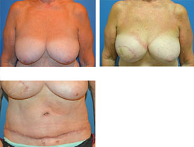BEFORE & AFTER: breast reconstruction #9