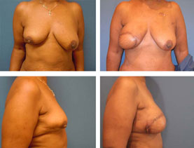 BEFORE & AFTER: Breast reconstruction #1
